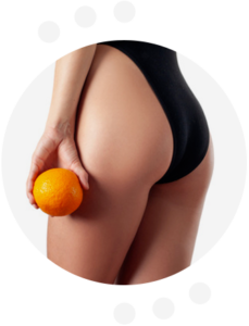Perfect Body Cellulite - celeiro - farmacia​